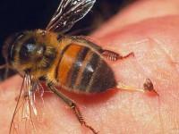 Как избавиться от опухоли после укуса пчелы