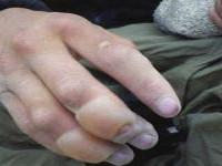 Лечение кожи после обморожения