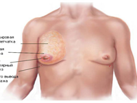 Причины развития и симптоматика гинекомастии