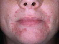 Пероральный дерматит