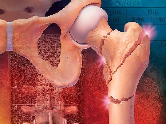 Распространенные болезни тазобедренного сустава